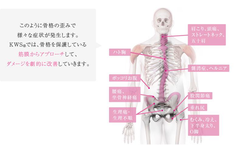 このように骨格の歪みで様々な症状が発生します。KWS®では、骨格を保護している筋膜からアプローチして、ダメージを劇的に改善していきます。